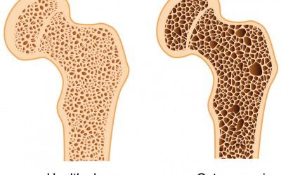 Tips If You Have Osteopenia and Osteoporosis